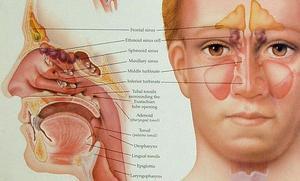 Le traitement de la pression des sinus