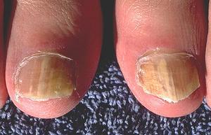 Comment utiliser l'eau de Javel pour guérir mycose des ongles
