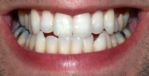 Combien de temps cela prend-il pour l'amoxicilline de travailler sur un mal de dents?
