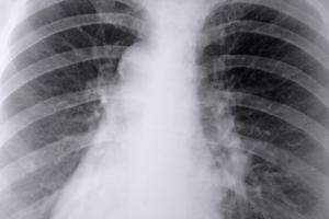 Activités pour la classe sur le système respiratoire