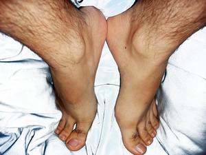 Signes et symptômes de stase veineuse ulcères
