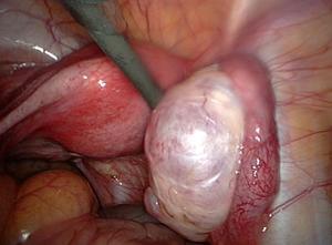Les remèdes homéopathiques pour les kystes ovariens