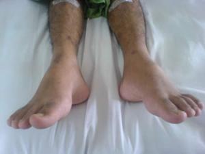 Quels sont les traitements pour pied tombant?