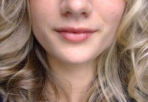 Causes d'une lèvre engourdie