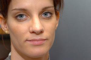 Comment utiliser Retin-A autour des yeux
