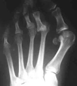 Hammertoes complications de la chirurgie