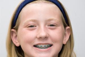 Types d'appareils orthopédiques pour les enfants