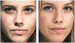 Comment traiter les taches d'hyperpigmentation