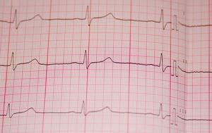 Comment compter le rythme cardiaque sur une deuxième bande 6