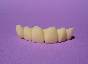 Combien de temps doivent être conservés modèles d'étude dentaires?